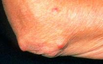 Ревматоидные узелки
