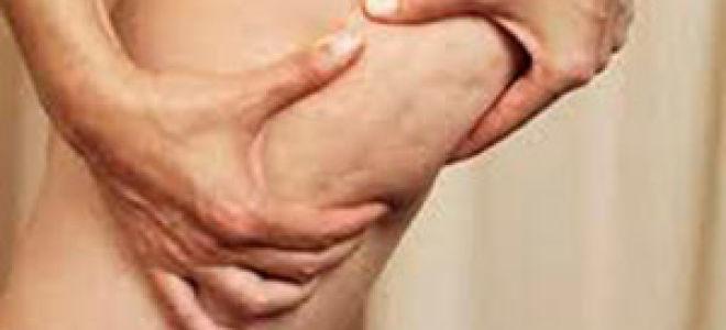Целлюлит: лечение, причины, стадии целлюлита