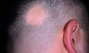 Очаговая (гнездная) алопеция: причины, признаки, ТОП 6 способов лечения