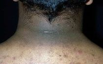 Черный акантоз : причины, фото, симптомы, лечение, виды.