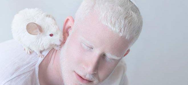 Что такое альбинизм, его виды и лечение