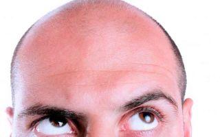 Подробно про алопецию — облысение у мужчин (виды, лечения)
