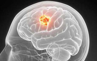 Ангиома (венозная) головного мозга