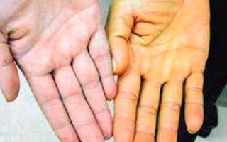 Холестаз: причины и признаки, лечение