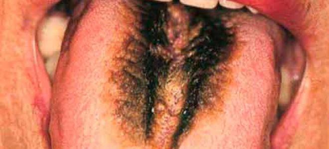 Волосатый язык