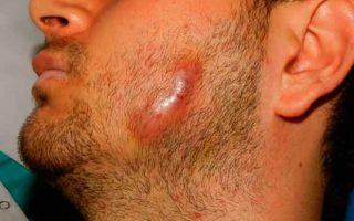 Актиномикоз кожи (костей) : лечение, симптомы, виды