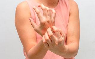 Чесотка: причины, симптомы, лечение