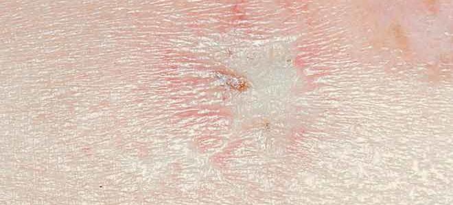 Виды и лечение атрофии кожи
