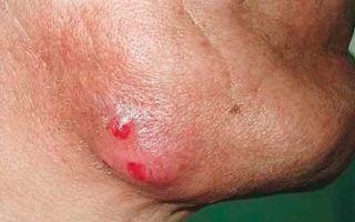 Все о актиномикозе челюстно лицевой области