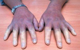 Акроцианоз (синюшность кожных покровов) — это симптом, а не болезнь
