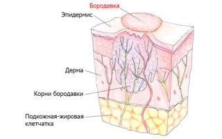 Бородавки