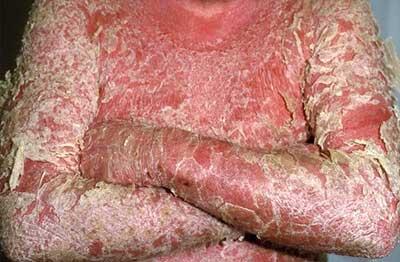 Эритродермия псориатическая