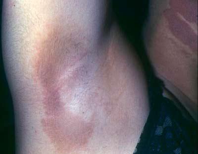 складки кожи