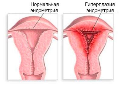 Гиперплазия