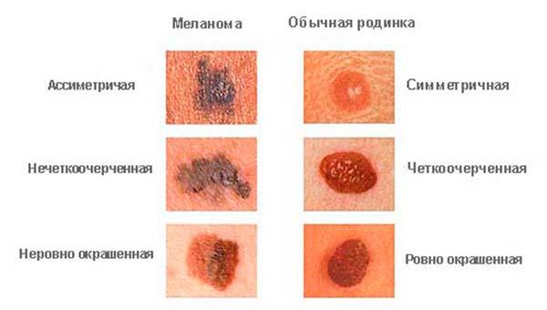 классификация меланомы кожи