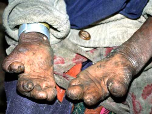 Лепра мутация пальцев