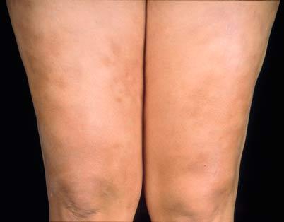 Проявление болезни Аддисона на кожных покровах