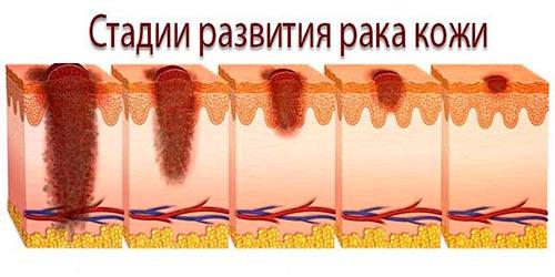 4 стадии рака кожи