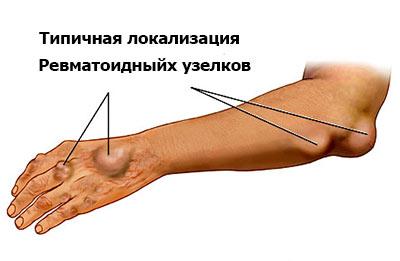 локализация ревматоидного узелка