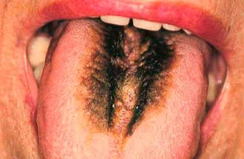 Черный волосатый язык