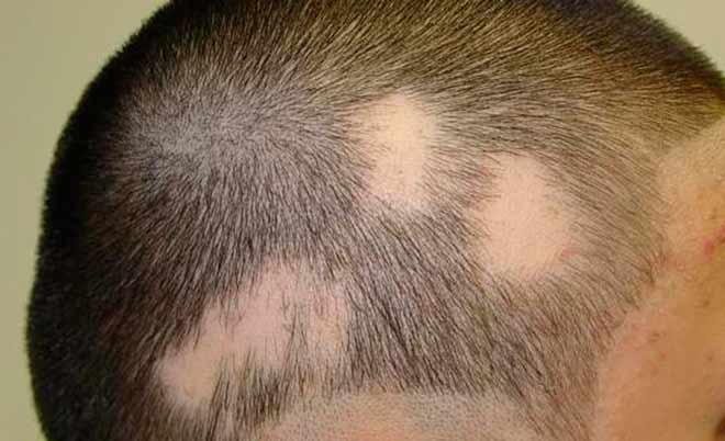 Болезнь на голове