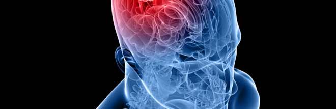 Венозная ангиома головного мозга
