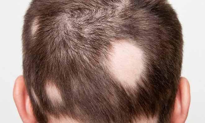 Человек с болезнью выпадением волос