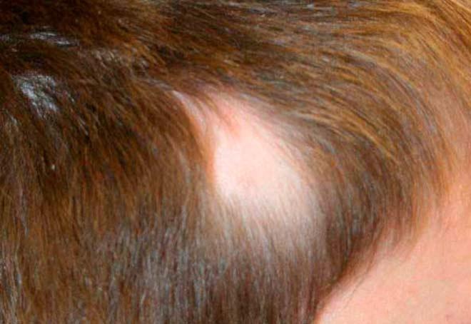 Выпадение-волос-у-ребенка