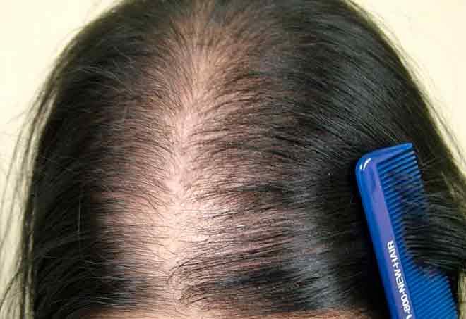 Выподение волос в центре головы