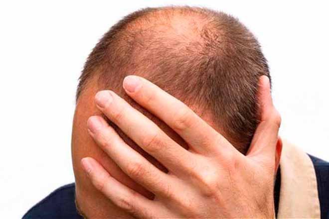 Лечение очаговой (гнездной) алопеции